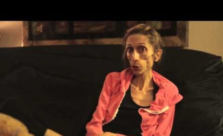 Rachael Farrokh: Anorexic Actress Weighs 40 Pounds (Yes, FORTY)