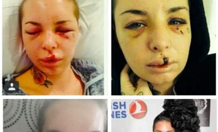 Christy Mack Posts Photos, Recovery Update Since War Machine Attack