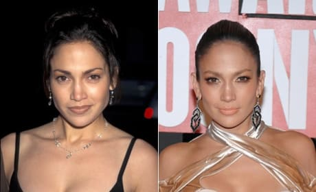 Jennifer Lopez Responds to Plastic Surgery Rumor