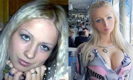 Human Barbie Before and After Plastic Surgery