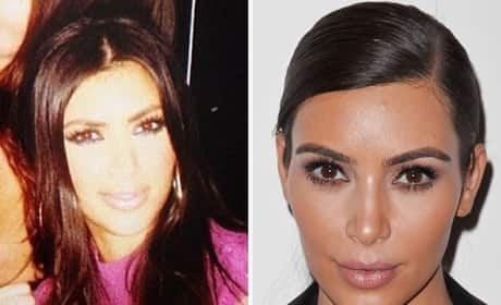 Has Kim Kardashian had plastic surgery?