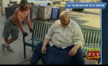 The Man with the 132-lb. Scrotum Recap