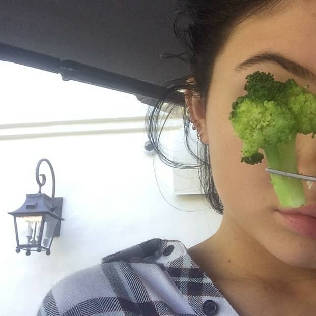 Kylie Jenner Lip Injections Photo