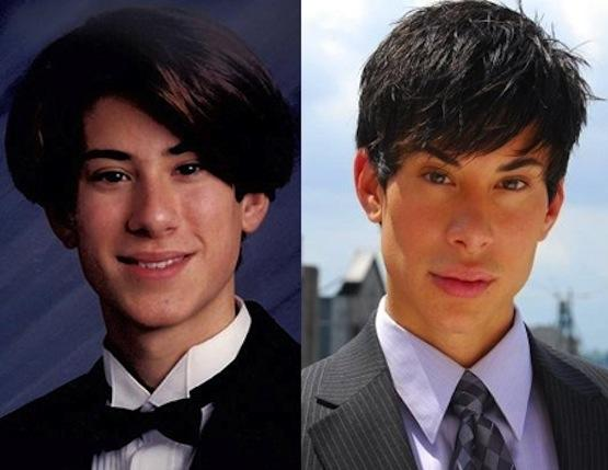 Justin Jedlica Before and After